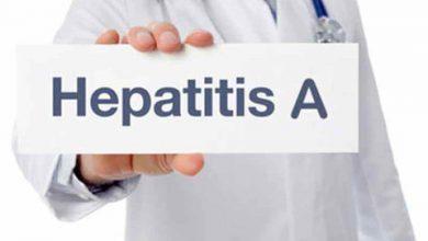 هپاتیت آ